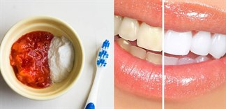 Cách sử dụng baking soda làm trắng răng hiệu quả tại nhà