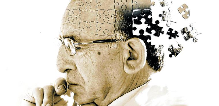 Tìm hiểu về bệnh Alzheimer