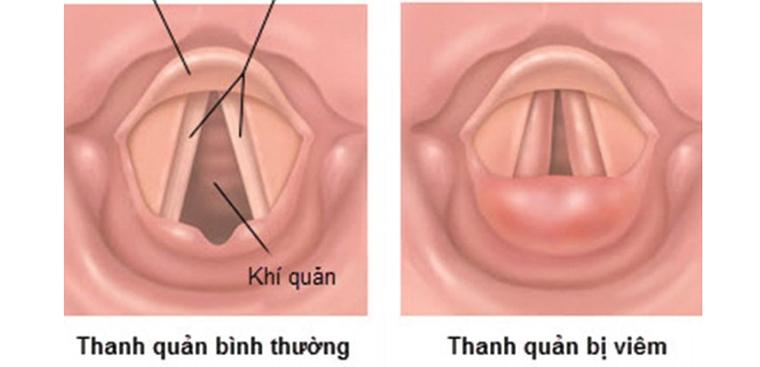 Tìm hiểu bệnh viêm thanh quản và cách điều trị viêm thanh quản