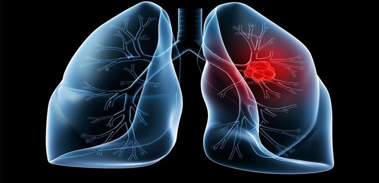 Ung thư phổi - Đừng trị bệnh khi quá muộn