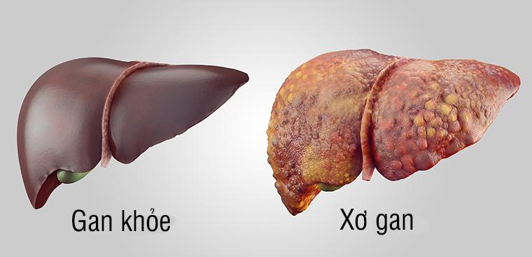 Bệnh xơ gan là gì và cách điều trị bệnh xơ gan
