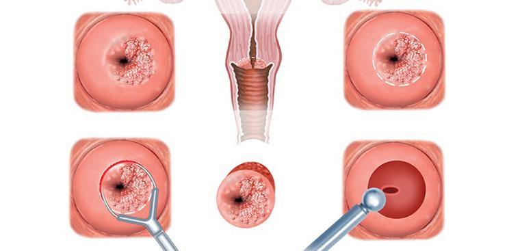 Viêm cổ tử cung và những điều cần biết