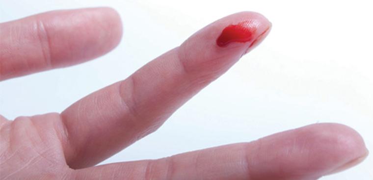 Dấu hiệu nhận biết bệnh rối loạn đông máu