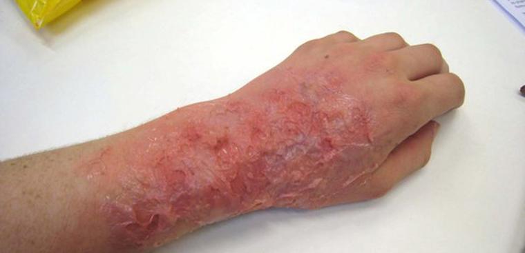 Điều trị khi bị bỏng