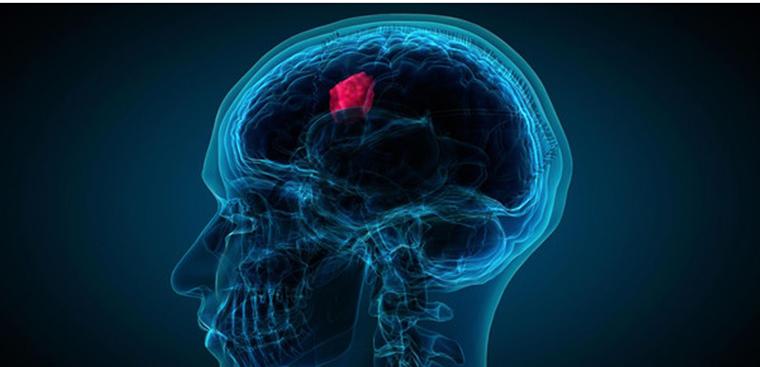 Triệu chứng và cách điều trị u màng não