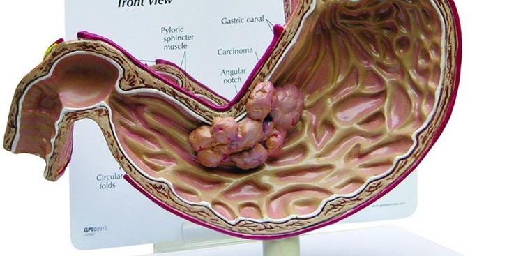 Nhận biết triệu chứng ung thư dạ dày