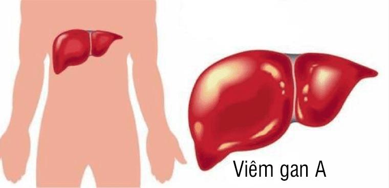 Chủ động phòng ngừa viêm gan siêu vi A và B