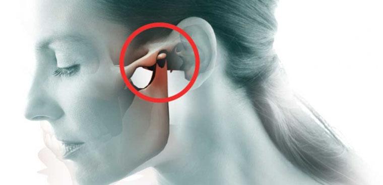 Phương pháp điều trị rối loạn thái dương hàm