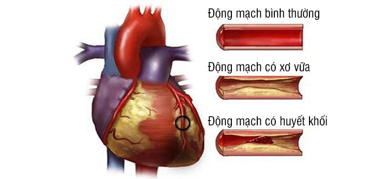 Tìm hiểu về bệnh thiếu máu cơ tim cục bộ